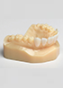 the Stratasys Dental Series of 3D printers uses these materials to create a range of dental appliances, restorations and models with consistency and exactness.